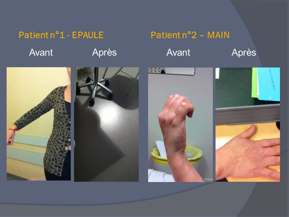 Avant Patient n°1 - EPAULEPatient n°2 – MAIN Après AvantAprès