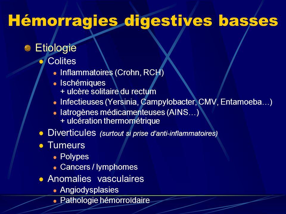 Hémorragies digestives basses Etiologie Colites Inflammatoires (Crohn, RCH) Ischémiques + ulcère solitaire du rectum Infectieuses (Yersinia, Campyloba