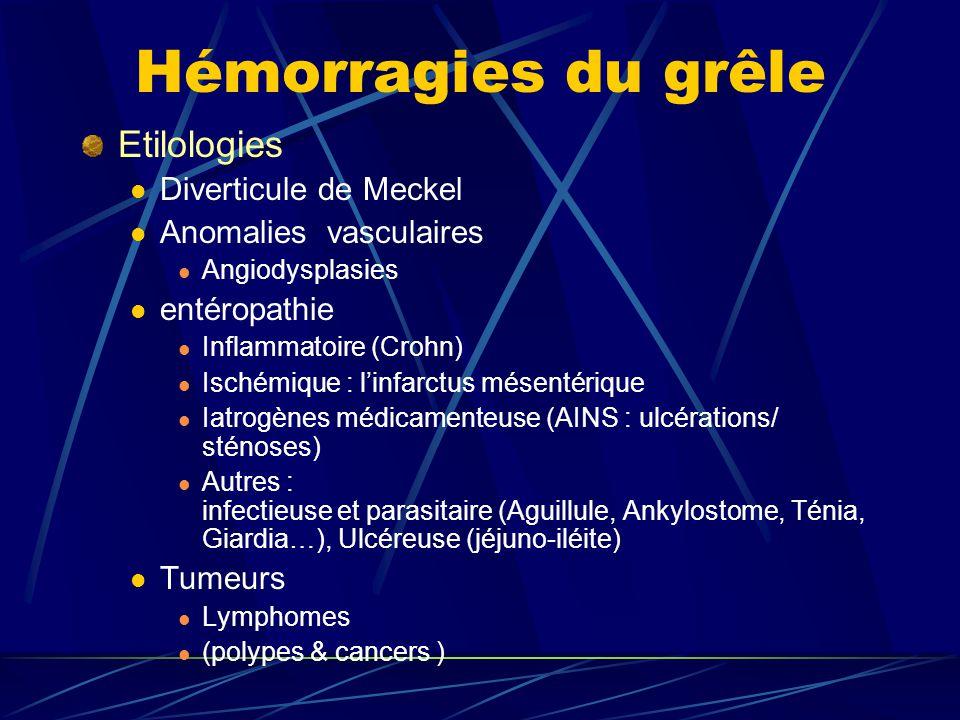 Hémorragies du grêle Etilologies Diverticule de Meckel Anomalies vasculaires Angiodysplasies entéropathie Inflammatoire (Crohn) Ischémique : linfarctus mésentérique Iatrogènes médicamenteuse (AINS : ulcérations/ sténoses) Autres : infectieuse et parasitaire (Aguillule, Ankylostome, Ténia, Giardia…), Ulcéreuse (jéjuno-iléite) Tumeurs Lymphomes (polypes & cancers )