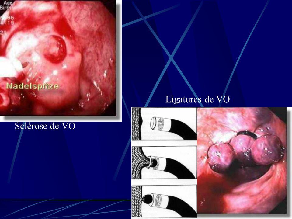 Sclérose de VO Ligatures de VO