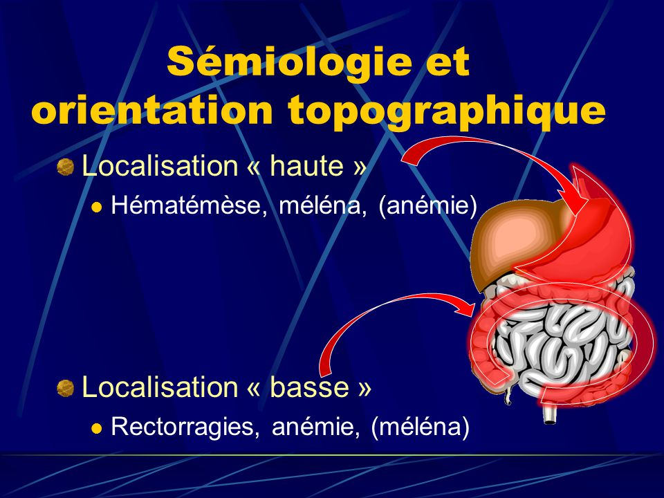 Sémiologie et orientation topographique Localisation « haute » Hématémèse, méléna, (anémie) Localisation « basse » Rectorragies, anémie, (méléna)