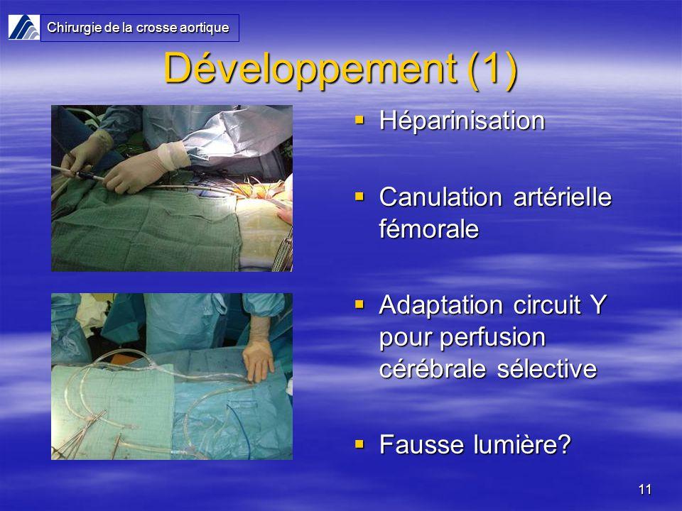 11 Développement (1) Héparinisation Héparinisation Canulation artérielle fémorale Canulation artérielle fémorale Adaptation circuit Y pour perfusion c