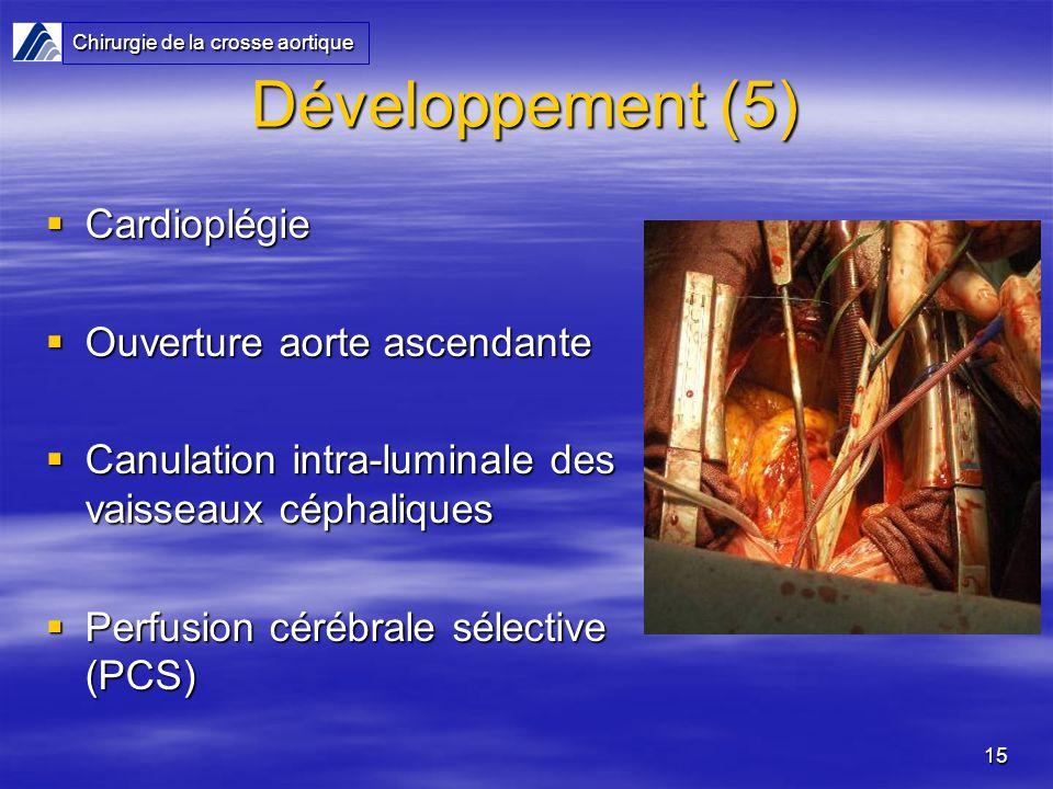 15 Développement (5) Cardioplégie Cardioplégie Ouverture aorte ascendante Ouverture aorte ascendante Canulation intra-luminale des vaisseaux céphaliques Canulation intra-luminale des vaisseaux céphaliques Perfusion cérébrale sélective (PCS) Perfusion cérébrale sélective (PCS) Chirurgie de la crosse aortique