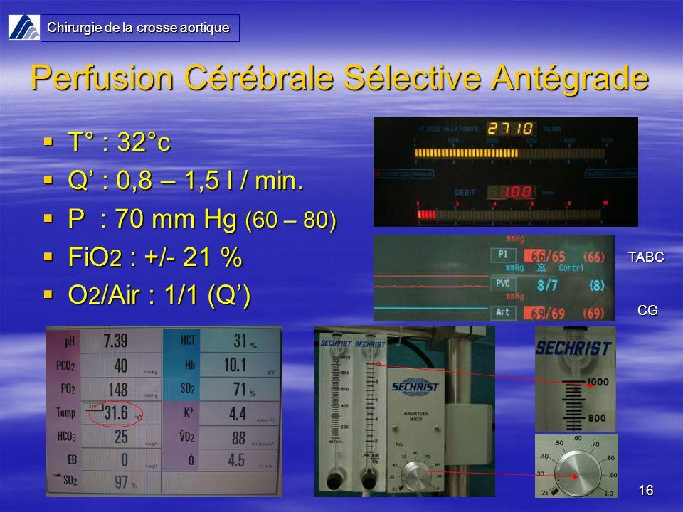 16 Perfusion Cérébrale Sélective Antégrade T° : 32°c T° : 32°c Q : 0,8 – 1,5 l / min. Q : 0,8 – 1,5 l / min. P : 70 mm Hg (60 – 80) P : 70 mm Hg (60 –
