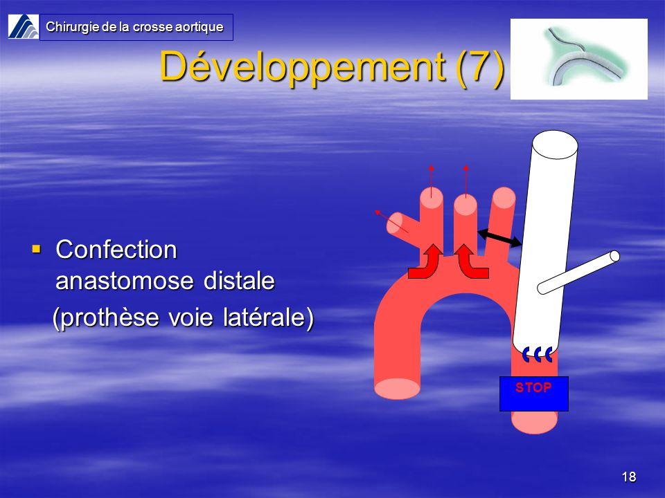 18 Développement (7) Confection anastomose distale Confection anastomose distale (prothèse voie latérale) (prothèse voie latérale) Chirurgie de la crosse aortique STOP