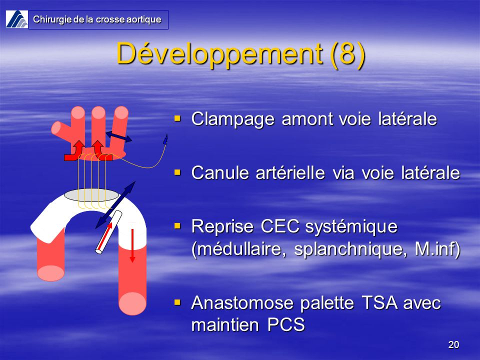 20 Développement (8) Clampage amont voie latérale Clampage amont voie latérale Canule artérielle via voie latérale Canule artérielle via voie latérale Reprise CEC systémique (médullaire, splanchnique, M.inf) Reprise CEC systémique (médullaire, splanchnique, M.inf) Anastomose palette TSA avec maintien PCS Anastomose palette TSA avec maintien PCS Chirurgie de la crosse aortique