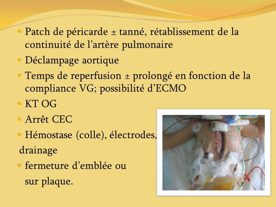 Patch de péricarde ± tanné, rétablissement de la continuité de lartère pulmonaire Déclampage aortique Temps de reperfusion ± prolongé en fonction de l