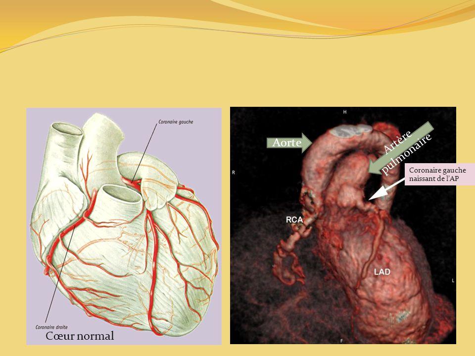 Cœur normal Coronaire gauche naissant de lAP Aorte Artère pulmonaire