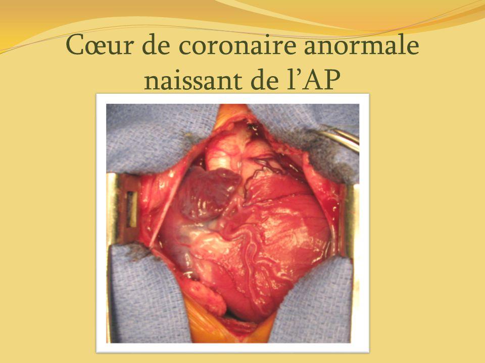 Cœur de coronaire anormale naissant de lAP
