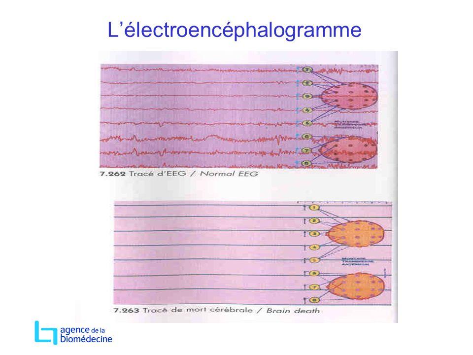 Lélectroencéphalogramme
