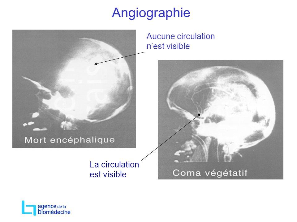 Angiographie Aucune circulation nest visible La circulation est visible