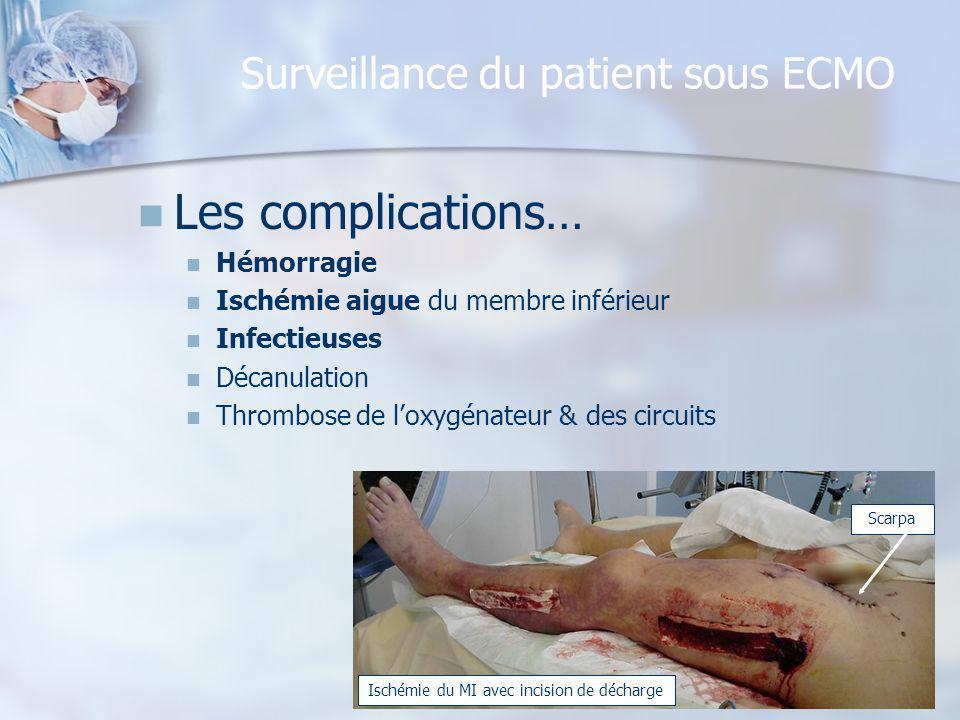 Surveillance du patient sous ECMO Les complications… Hémorragie Ischémie aigue du membre inférieur Infectieuses Décanulation Thrombose de loxygénateur