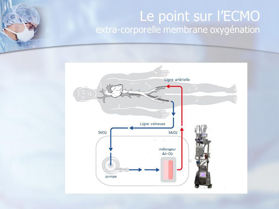 Le point sur lECMO extra-corporelle membrane oxygénation pompe mélangeur Air-O2 SVO2SAO2 Ligne veineuse Ligne artérielle