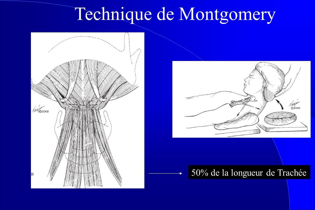 Technique de Montgomery 50% de la longueur de Trachée