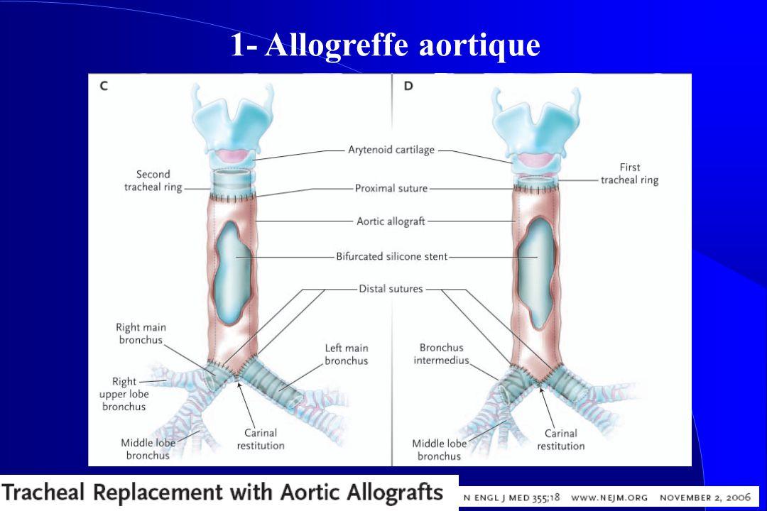 1- Allogreffe aortique