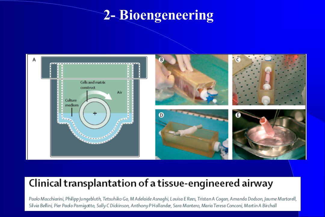 2- Bioengeneering