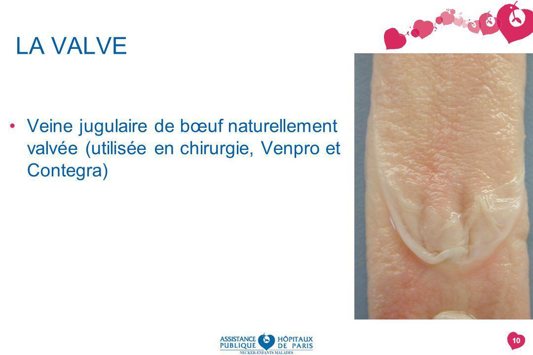 10 LA VALVE Veine jugulaire de bœuf naturellement valvée (utilisée en chirurgie, Venpro et Contegra)