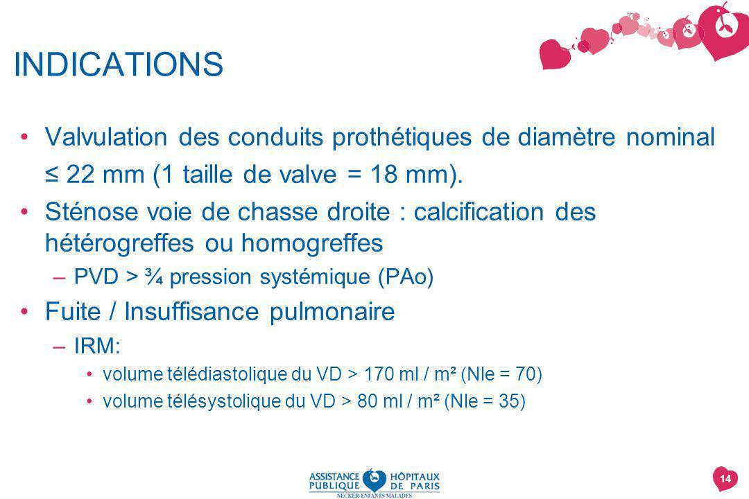 14 INDICATIONS Valvulation des conduits prothétiques de diamètre nominal 22 mm (1 taille de valve = 18 mm).