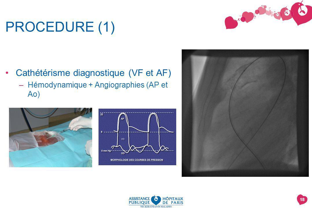 18 PROCEDURE (1) Cathétérisme diagnostique (VF et AF) –Hémodynamique + Angiographies (AP et Ao)
