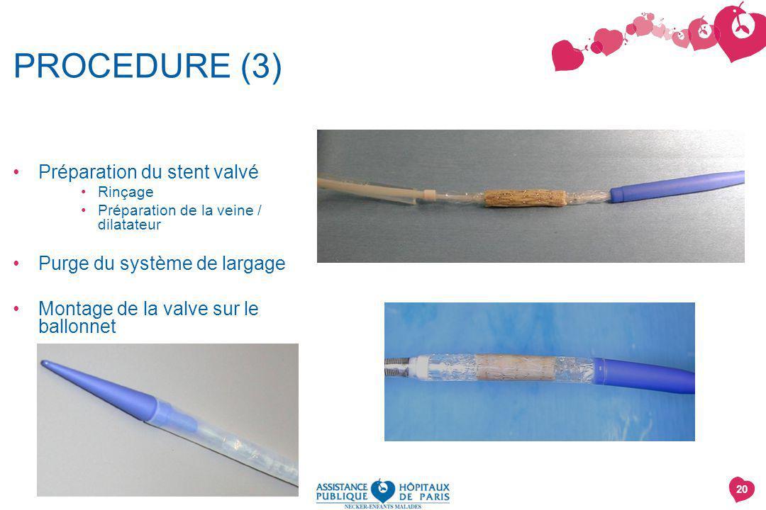 20 PROCEDURE (3) Préparation du stent valvé Rinçage Préparation de la veine / dilatateur Purge du système de largage Montage de la valve sur le ballon
