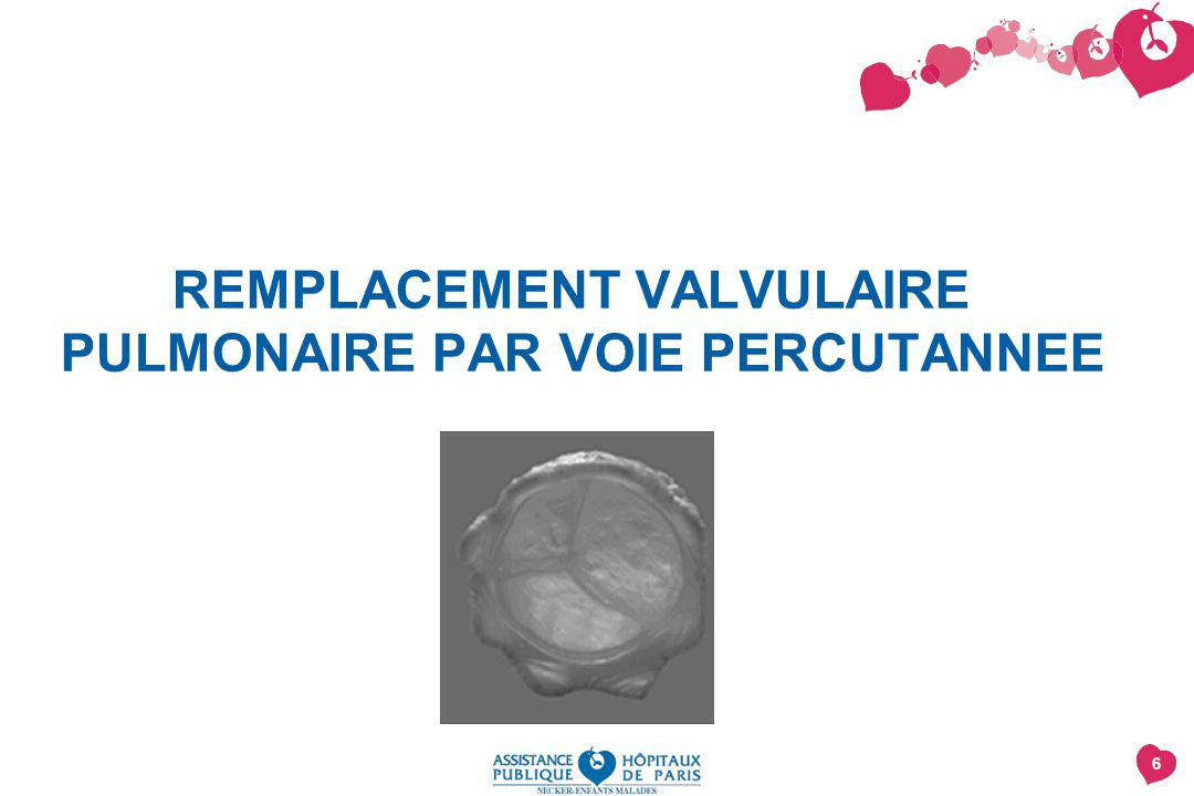 6 REMPLACEMENT VALVULAIRE PULMONAIRE PAR VOIE PERCUTANNEE