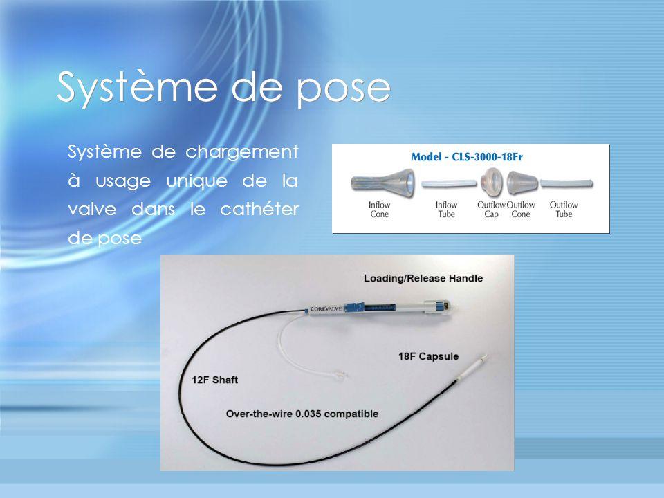 Système de pose Système de chargement à usage unique de la valve dans le cathéter de pose