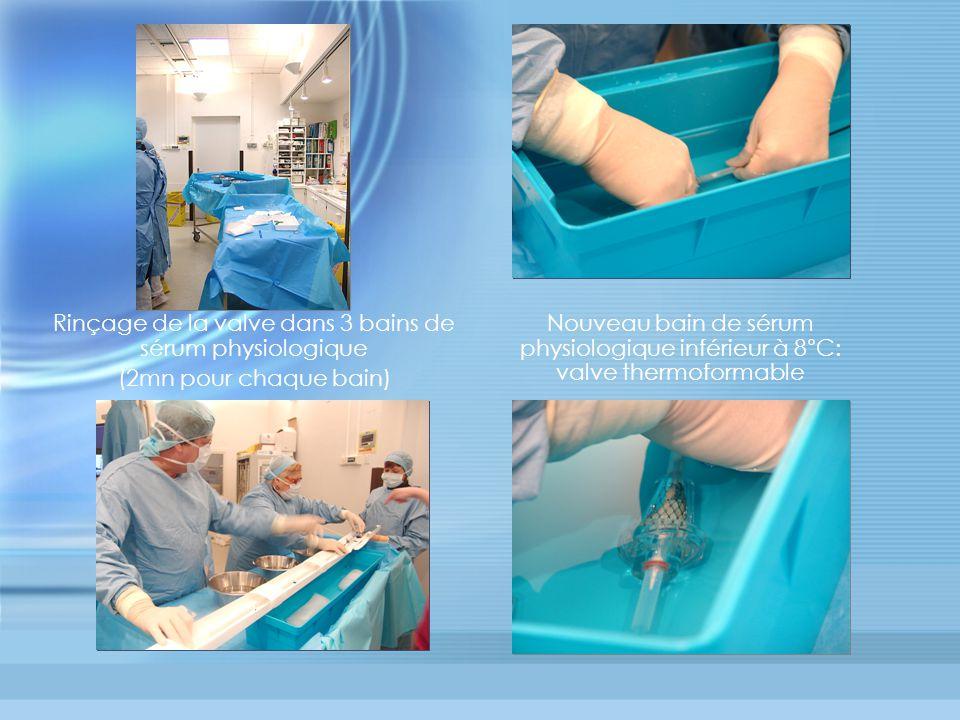 Rinçage de la valve dans 3 bains de sérum physiologique (2mn pour chaque bain) Nouveau bain de sérum physiologique inférieur à 8°C: valve thermoformable