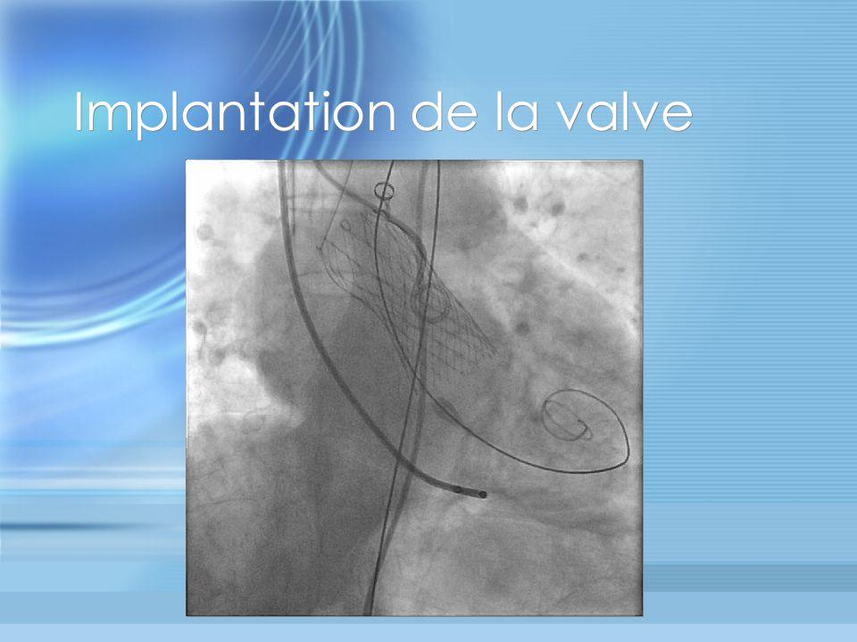 Implantation de la valve