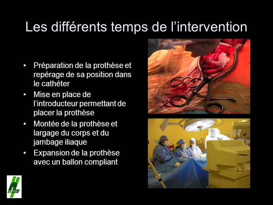Les différents temps de lintervention Préparation de la prothèse et repérage de sa position dans le cathéter Mise en place de lintroducteur permettant