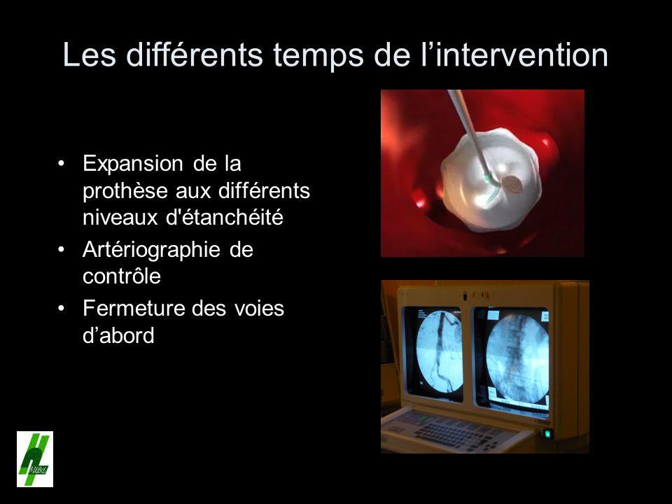 Les différents temps de lintervention Expansion de la prothèse aux différents niveaux d'étanchéité Artériographie de contrôle Fermeture des voies dabo