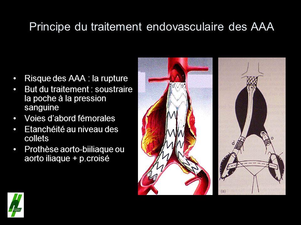 Principe du traitement endovasculaire des AAA Risque des AAA : la rupture But du traitement : soustraire la poche à la pression sanguine Voies dabord