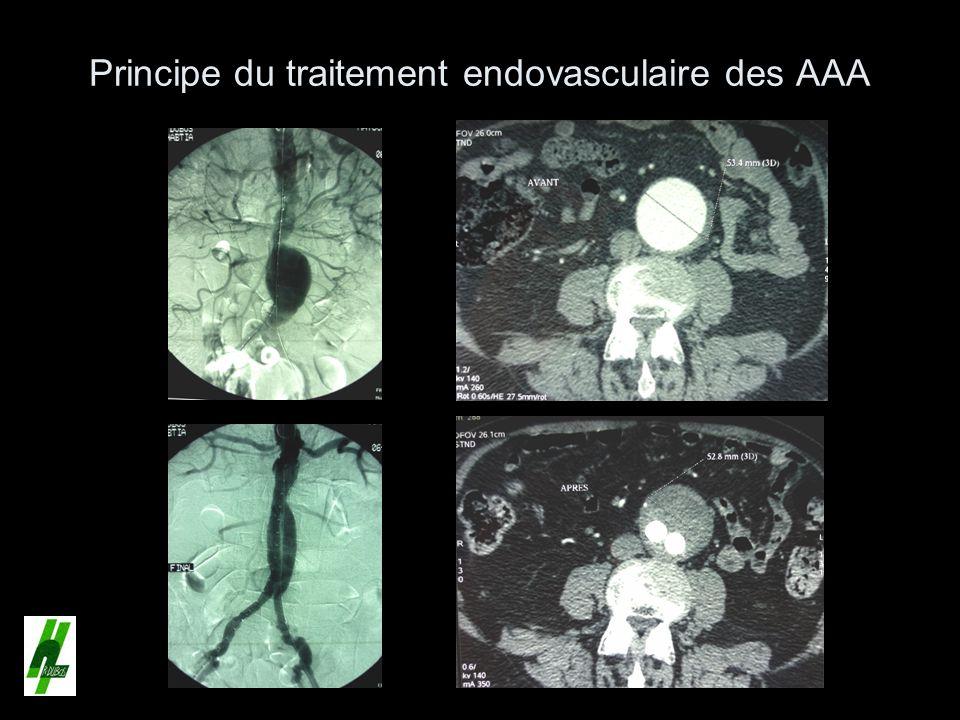 Principe du traitement endovasculaire des AAA