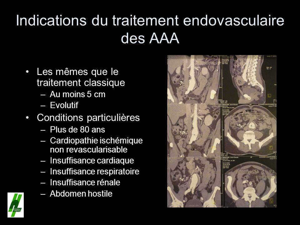 Indications du traitement endovasculaire des AAA Les mêmes que le traitement classique –Au moins 5 cm –Evolutif Conditions particulières –Plus de 80 a