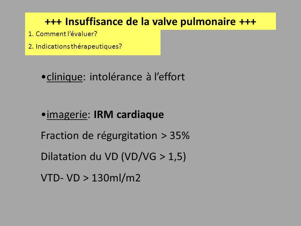 +++ Insuffisance de la valve pulmonaire +++ 1. Comment lévaluer? clinique: intolérance à leffort imagerie: IRM cardiaque Fraction de régurgitation > 3