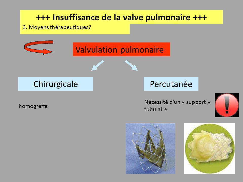 +++ Insuffisance de la valve pulmonaire +++ 3. Moyens thérapeutiques? Chirurgicale Valvulation pulmonaire Percutanée Nécessité dun « support » tubulai