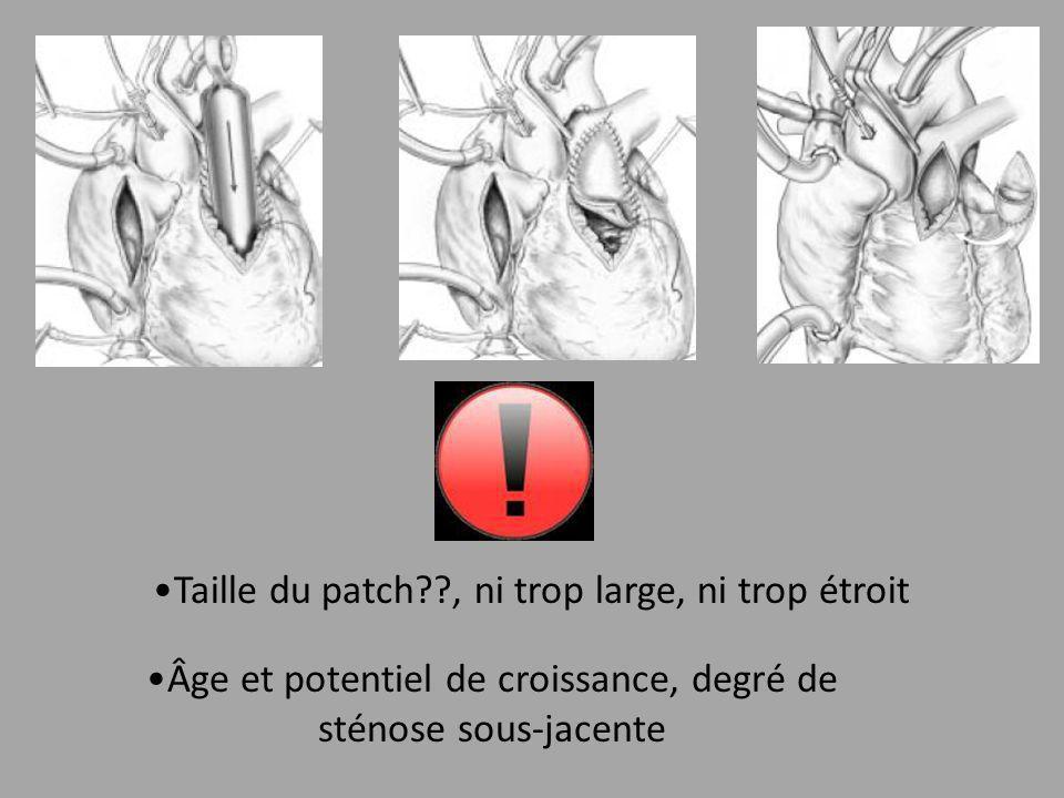 Taille du patch??, ni trop large, ni trop étroit Âge et potentiel de croissance, degré de sténose sous-jacente