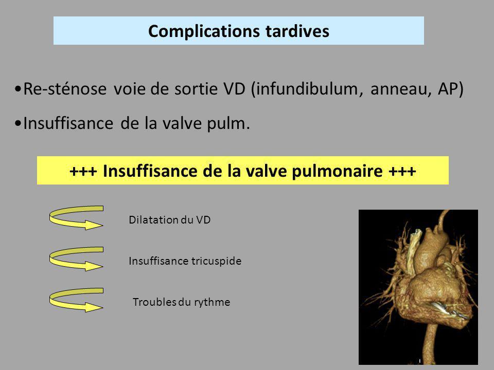 Complications tardives Re-sténose voie de sortie VD (infundibulum, anneau, AP) Insuffisance de la valve pulm. +++ Insuffisance de la valve pulmonaire