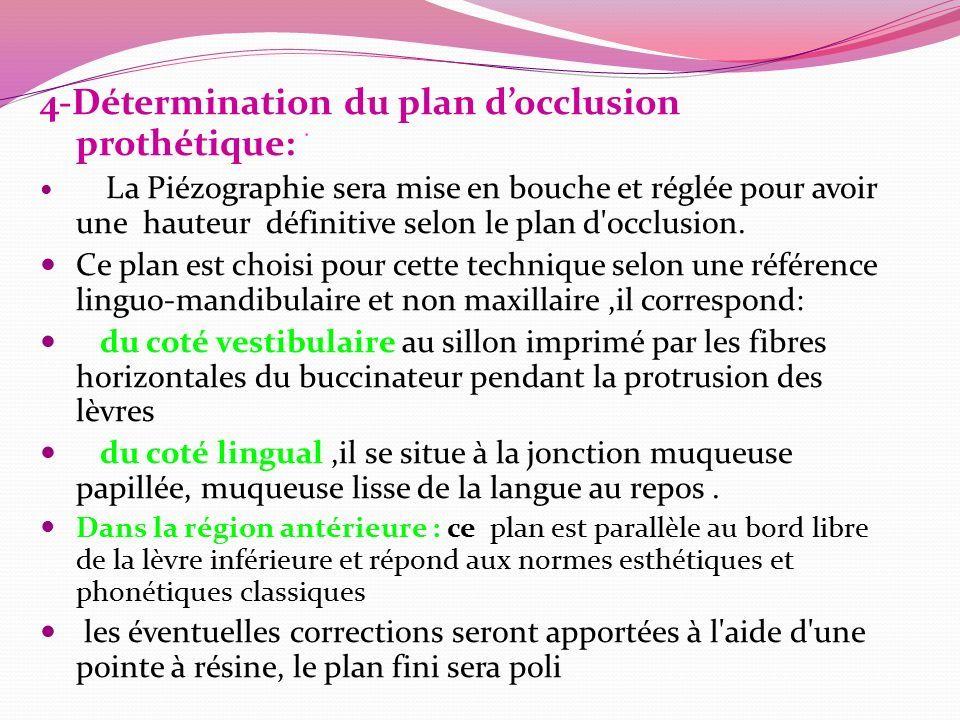 4-Détermination du plan d'occlusion prothétique: ۬ La Piézographie sera mise en bouche et réglée pour avoir une hauteur définitive selon le plan d occlusion.