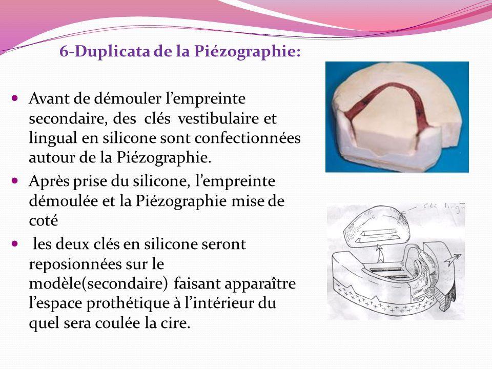 6-Duplicata de la Piézographie: Avant de démouler l'empreinte secondaire, des clés vestibulaire et lingual en silicone sont confectionnées autour de la Piézographie.