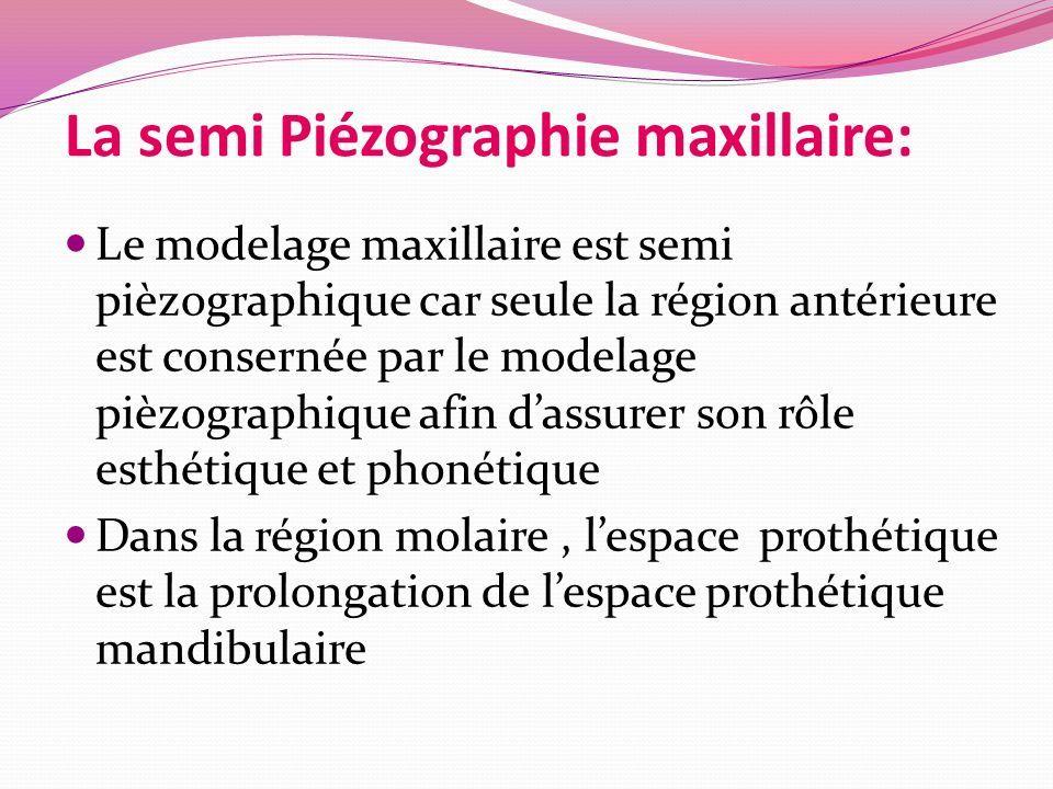 La semi Piézographie maxillaire: Le modelage maxillaire est semi pièzographique car seule la région antérieure est consernée par le modelage pièzographique afin d'assurer son rôle esthétique et phonétique Dans la région molaire, l'espace prothétique est la prolongation de l'espace prothétique mandibulaire