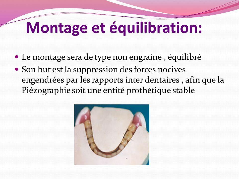 Montage et équilibration: Le montage sera de type non engrainé, équilibré Son but est la suppression des forces nocives engendrées par les rapports inter dentaires, afin que la Piézographie soit une entité prothétique stable