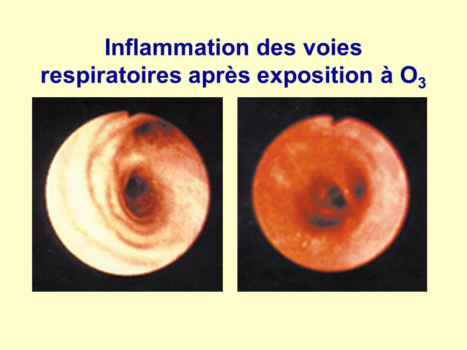 Inflammation des voies respiratoires après exposition à O 3