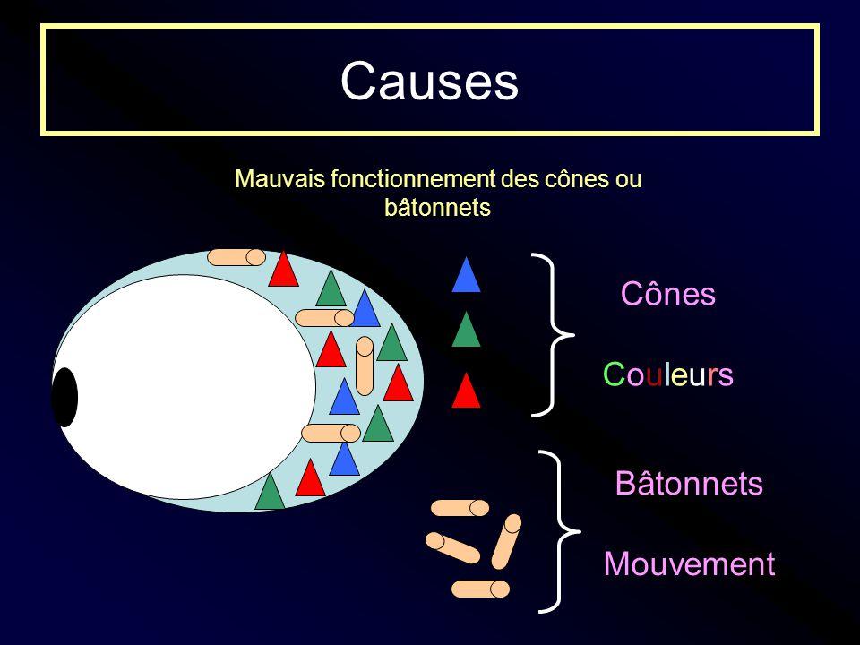 Causes Mauvais fonctionnement des cônes ou bâtonnets Cônes Couleurs Bâtonnets Mouvement
