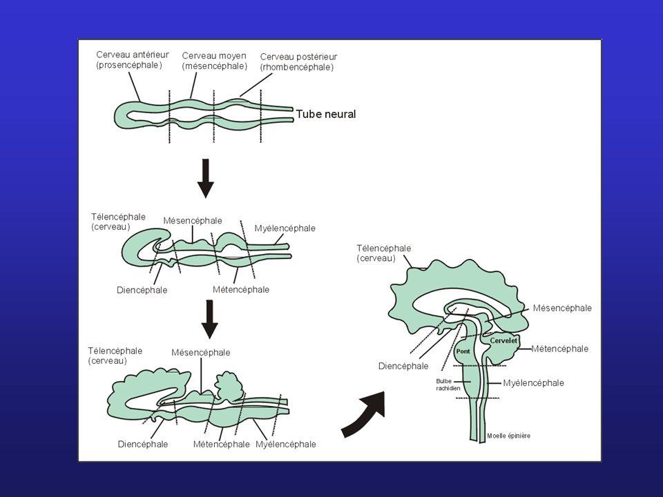 Obstruction des canaux permettant l écoulement du LCR peut causer lhydrocéphalie