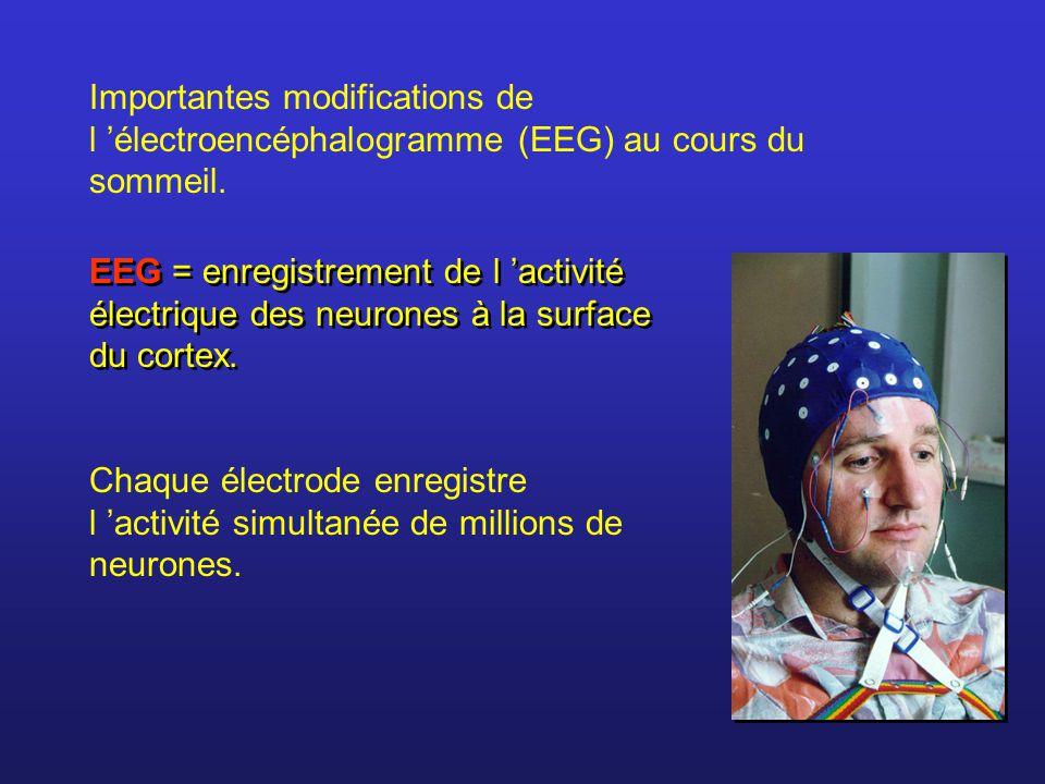 Importantes modifications de l électroencéphalogramme (EEG) au cours du sommeil.