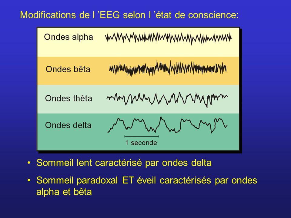 Modifications de l EEG selon l état de conscience: Sommeil lent caractérisé par ondes delta Sommeil paradoxal ET éveil caractérisés par ondes alpha et bêta