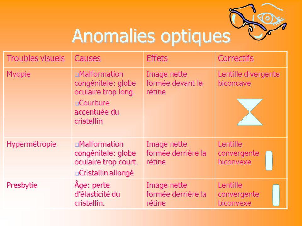 Anomalies optiques Troubles visuels CausesEffetsCorrectifs Myopie Malformation congénitale: globe oculaire trop long.