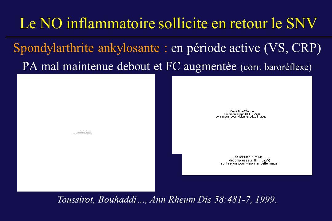 Le NO inflammatoire sollicite en retour le SNV Spondylarthrite ankylosante : en période active (VS, CRP) PA mal maintenue debout et FC augmentée (corr