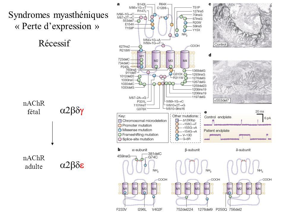 Syndromes myasthéniques « Perte dexpression » Récessif nAChR fétal nAChR adulte