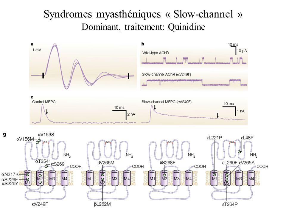 Syndromes myasthéniques « Slow-channel » Dominant, traitement: Quinidine
